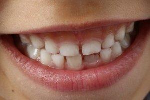 teeth 1743981 640 1 300x200 1