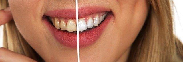 Yellow versus white teeth 1